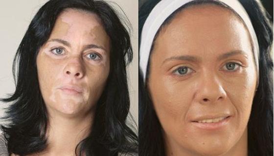 Vitiligo Tedavisi Öncesi - Sonrası